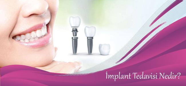 Bir Günde Implant Ve Üzerine Diş