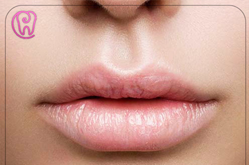 Lip Aug. (Lip Enhancement)