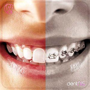 şeffaf diş teli ve şeffaf diş plağı