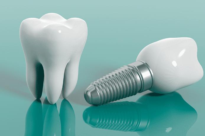 implant nedir? Nasıl Uygulanır?