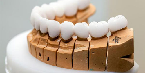 Zirkonyum Diş Kaplama Tedavisi