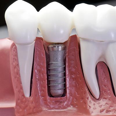 Nişantaşı Implant