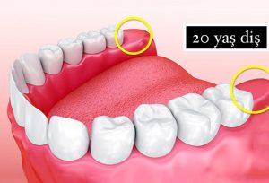 20'lik Diş Nasıl Çekiliyor?
