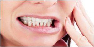 Diş Sıkmasında Neler Yapılır?
