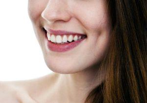 Lamina Diş Kaplama Nasıl Uygulanır ?