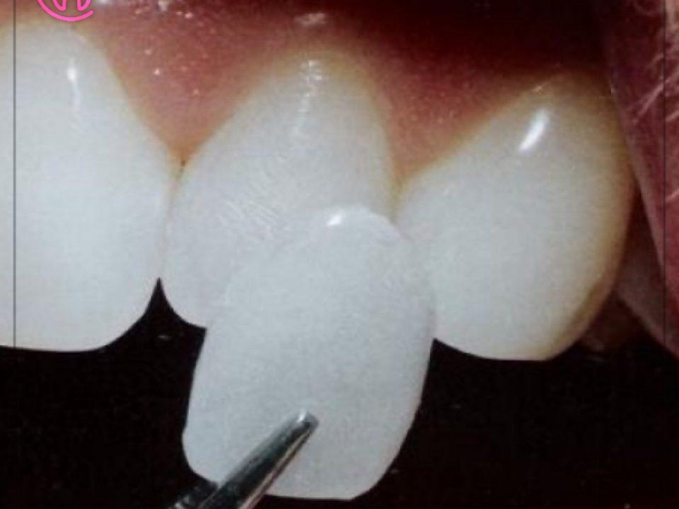 Lamine Diş Fiyatları