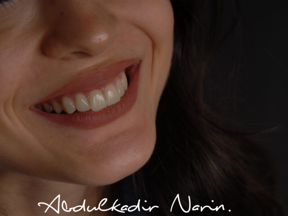 dental lamina abdulkadir narin