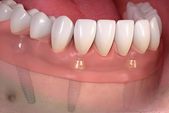 Hangi Koşullarda 1 Günde implant Yapılır