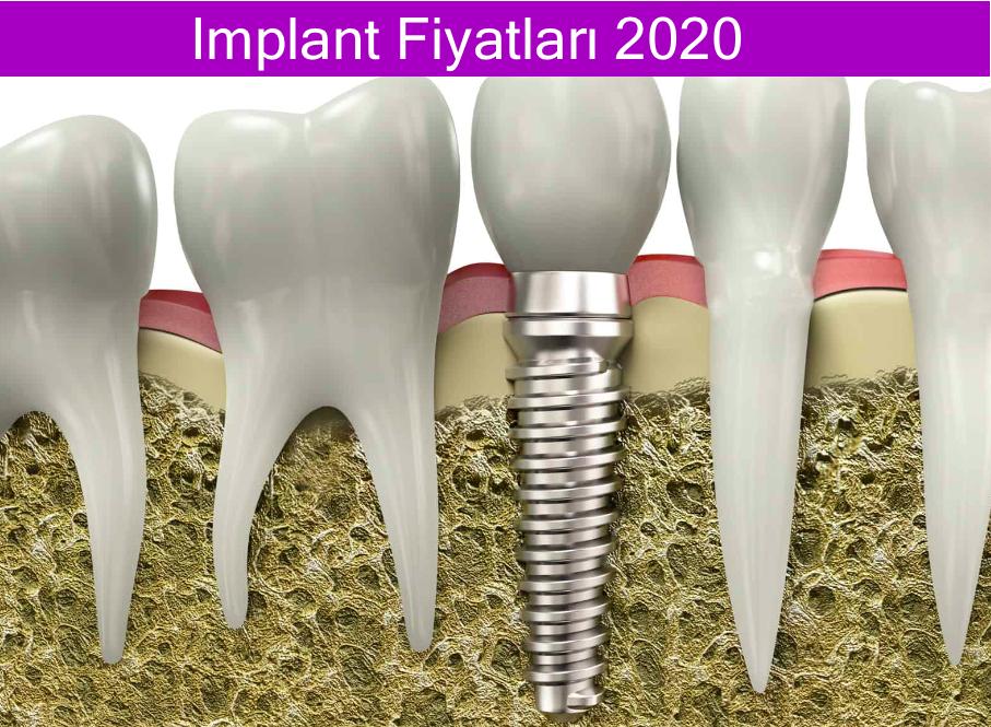 implant fiyatları 2020