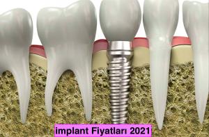 implant fiyatları 2021