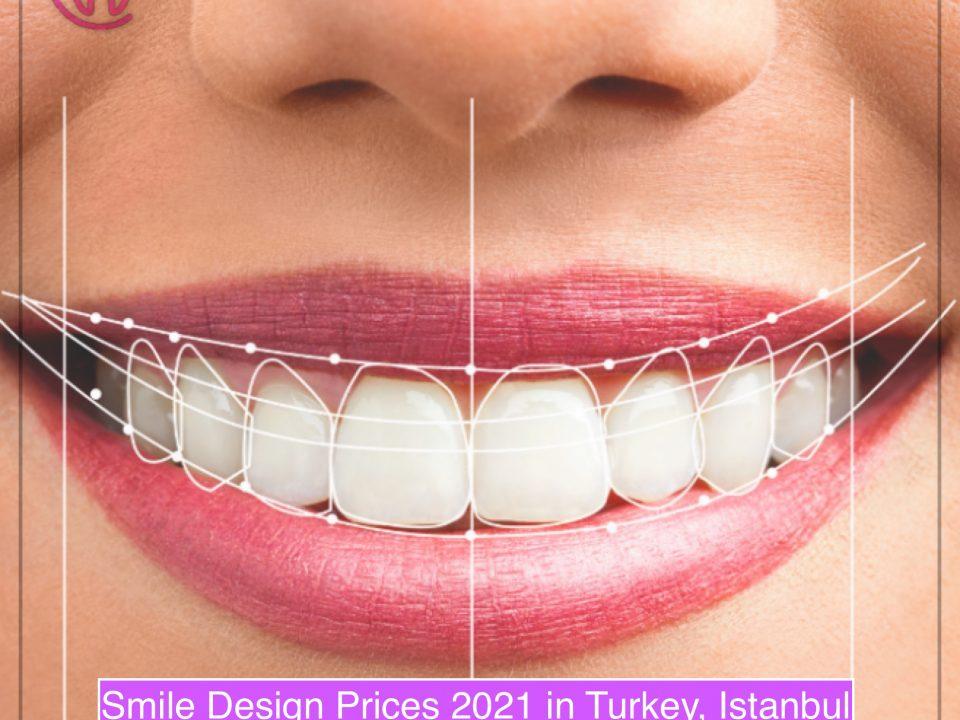 dental treatments cost in turkey istanbul 2021