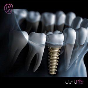 Bir günde implant