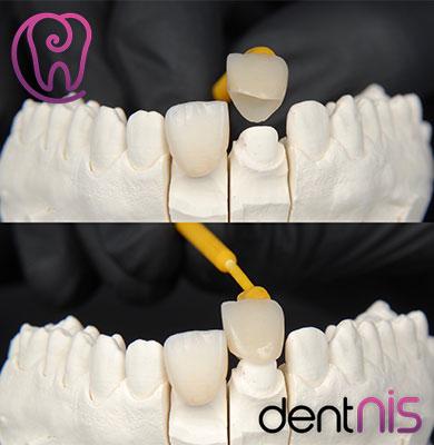 Best Cosmetic Dentist-2