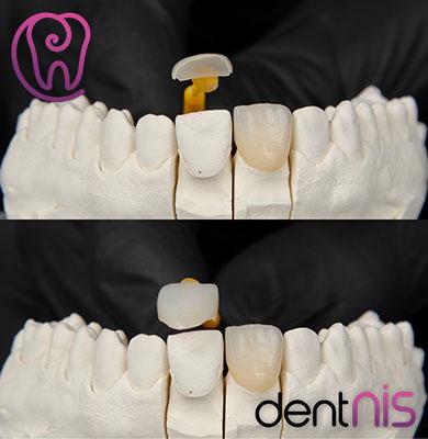 Beste Zahnarzt