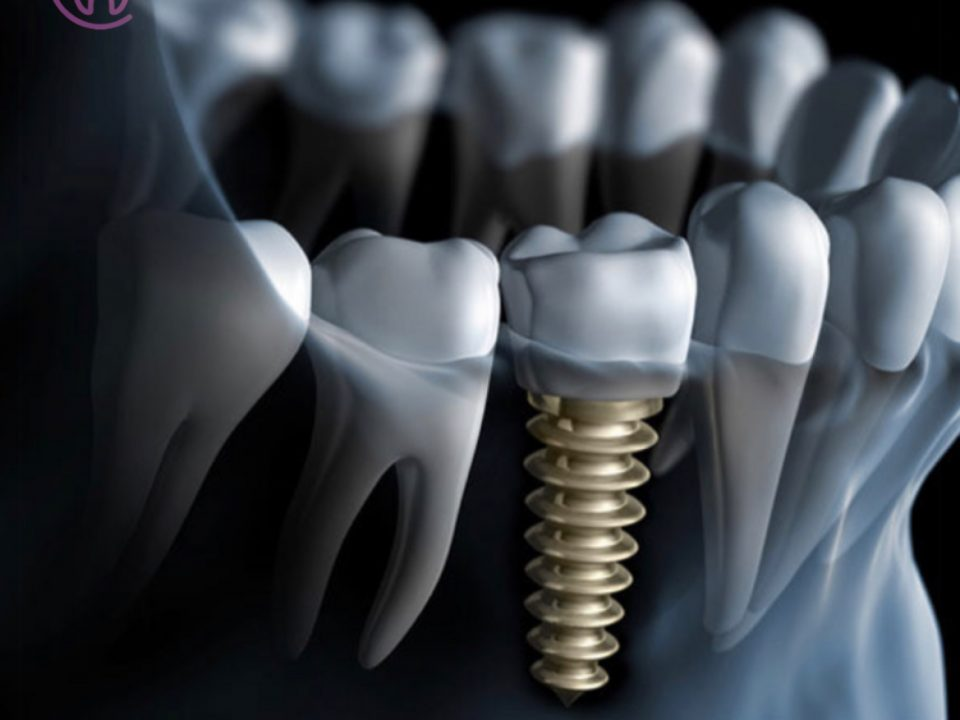 Dental implant Diş implantı