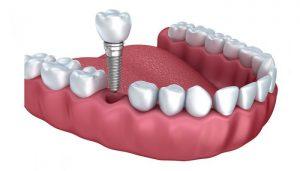 Şeker Hastaları (Diyabet) için implant