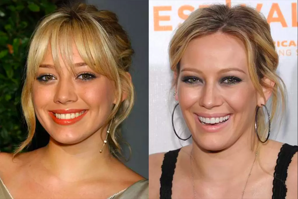 Dişlerini Yaptıran Ünlüler Hilary Duff