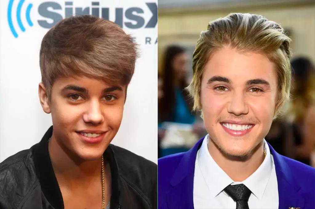 Dişlerini Yaptıran Ünlüler - Justing Bieber