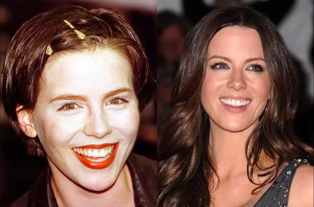Dişlerini Yaptıran Ünlüler- Kate Beckinsale