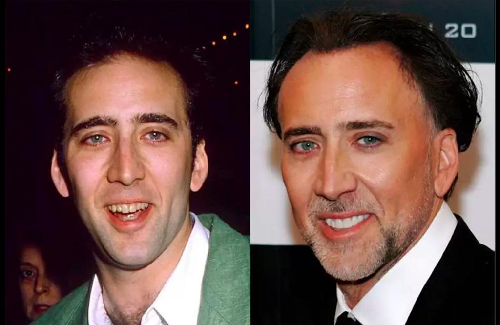Dişlerini Yaptıran Ünlüler -Nicolas Cage