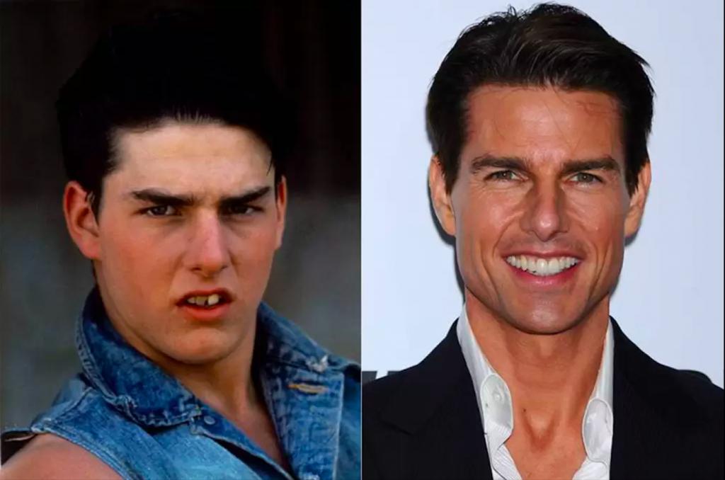 Dişlerini Yaptıran Ünlüler- Tom Cruise