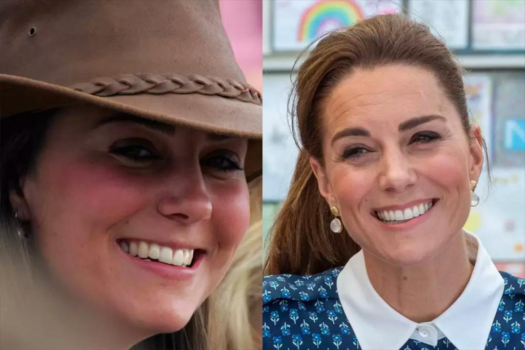 Dişlerini Yaptıran Ünlüler Kate Middleton
