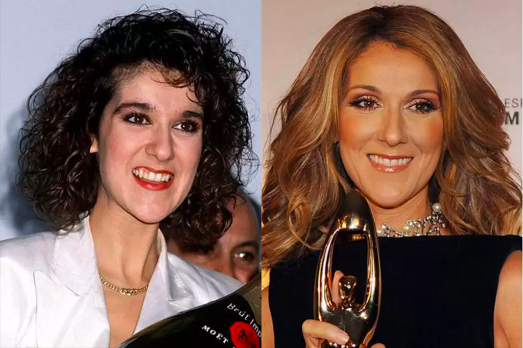 Ünlülerin Dişleri - Celine Dion