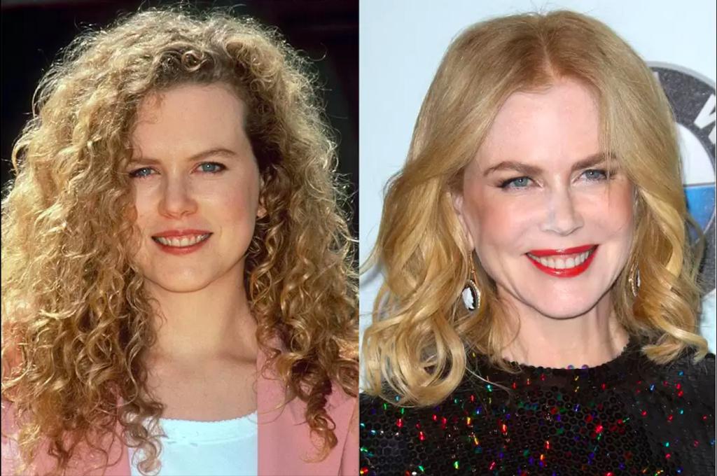 Ünlülerin Dişleri -Nicole Kidman