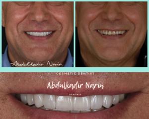Aesthetic Dentistry Turkey