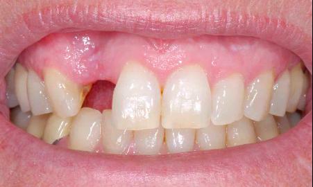 Boş Diş Yerine Ne Yapılır?