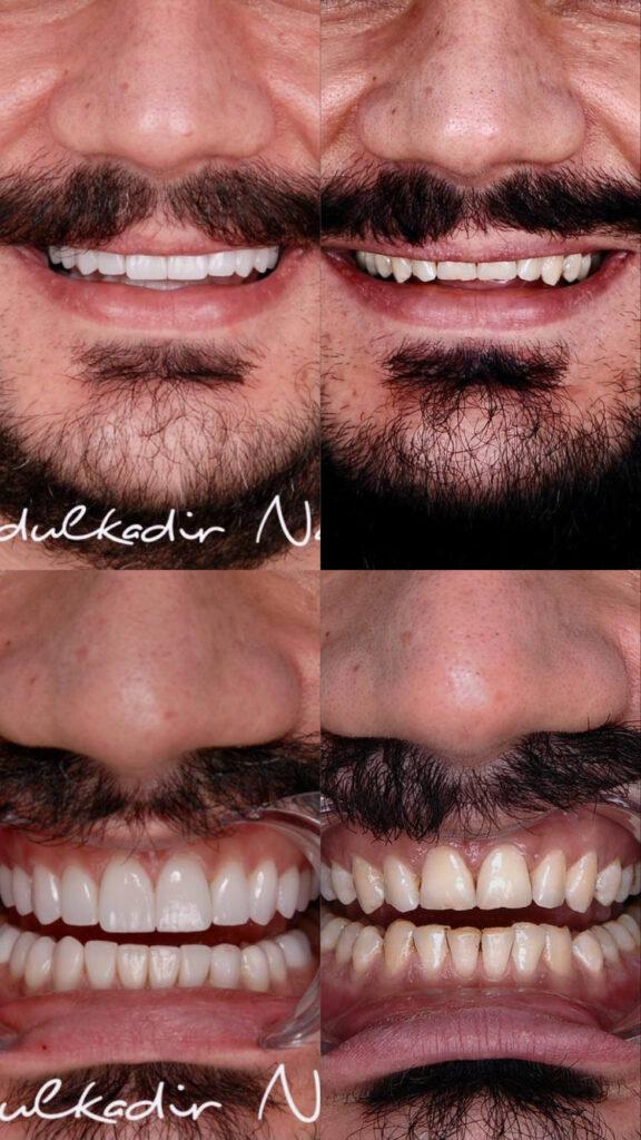 Öncesi Sonrası - Gülüş Tasarımı