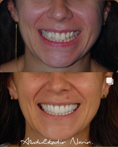 Öncesi Sonrası - Diş Kaplama