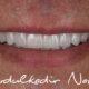 Ön Diş Kaplama Tedavisi Nasıl Yapılır?