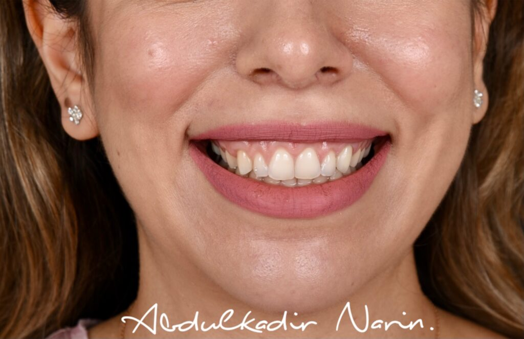 Öncesi Sonrası -Diş Estetiği