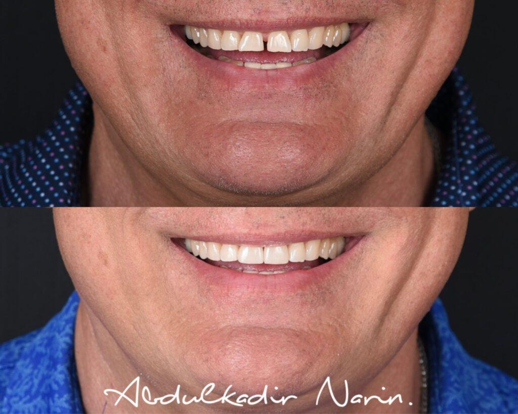 Öncesi Sonrası - Lamine Diş